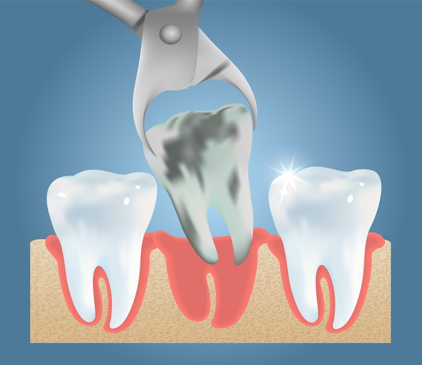 Illustration of a rotten tooth being extracted from between two healthy, white teeth